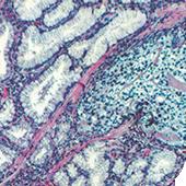 顕微鏡接続撮影(病理標本)